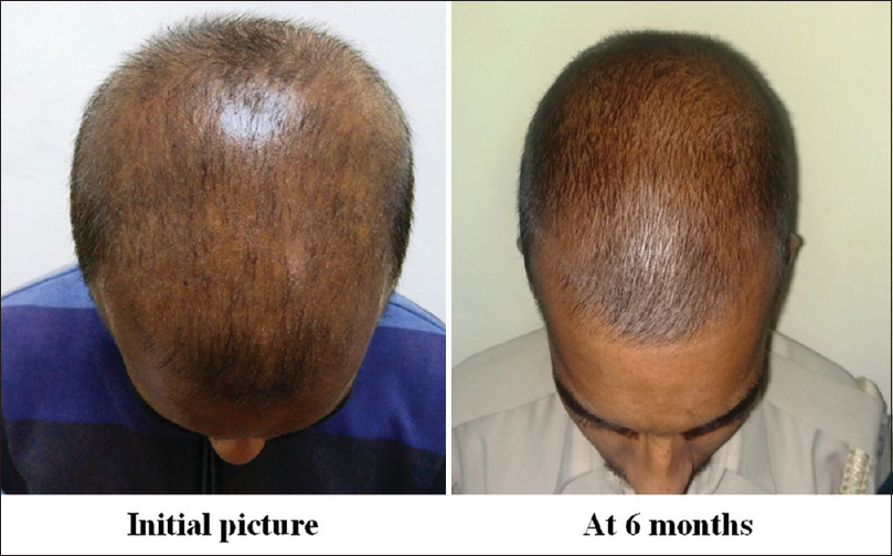A study to compare the efficacy of platelet-rich plasma and