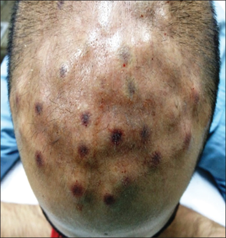 Figure 4: After injecting platelet-rich plasma