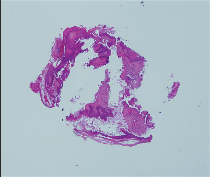 Figure 3: Histopathology shows focal areas resembling eosinophilic bony tissue showing osteoblastic rimming along with scattered osteocytes within distinct lacunae (H and E, ×40)