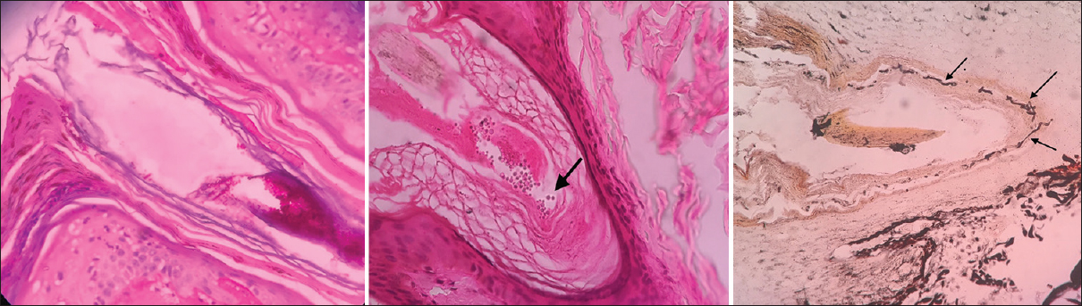 Histopathology of hair follicle epithelium in patients of