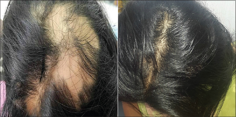 Figure 2: Pretreatment and follow-up photographs of a 13-year-old female patient showing regrowth after 6 months of oral azathioprine 25 mg daily