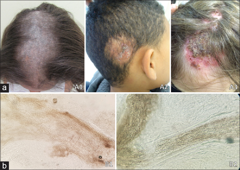 Figure 1: (a) Clinical aspects of tinea capitis. (A1) Tonsurant trichophytic tinea capitis. (A2) Tonsurant microsporic tinea capitis. (A3) Inflammatory-type kerion celsi tinea capitis. (b) Presentations of parasitic fungal invasion of the hair shaft. (B1) Ectothrix.type parasite.(B2) Endothrix-type parasite