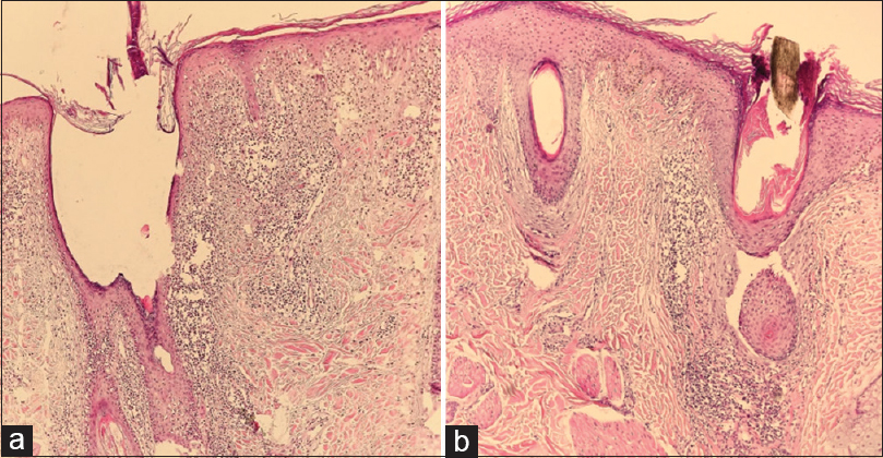 Figure 1: (a) Thin epithelium, interfollicular epidermal interface dermatitis, thickening of basement membrane, and dense superficial and deep perivascular and perifollicular lymphocytic infiltration at DLE. H and E staining ×100, (b) perifollicular lymphocytic infiltration and perifollicular lamellar fibrosis at the level of infundibulum perifollicular clefting and hypergranulosis at LPP. H and E ×100